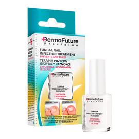 Terapia przeciw grzybicy paznokci